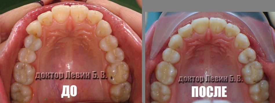 Два фото зубного ряда . До лечения и после лечения. Демонстрирует возможности брекет систем в коррекции длины зубного ряда.