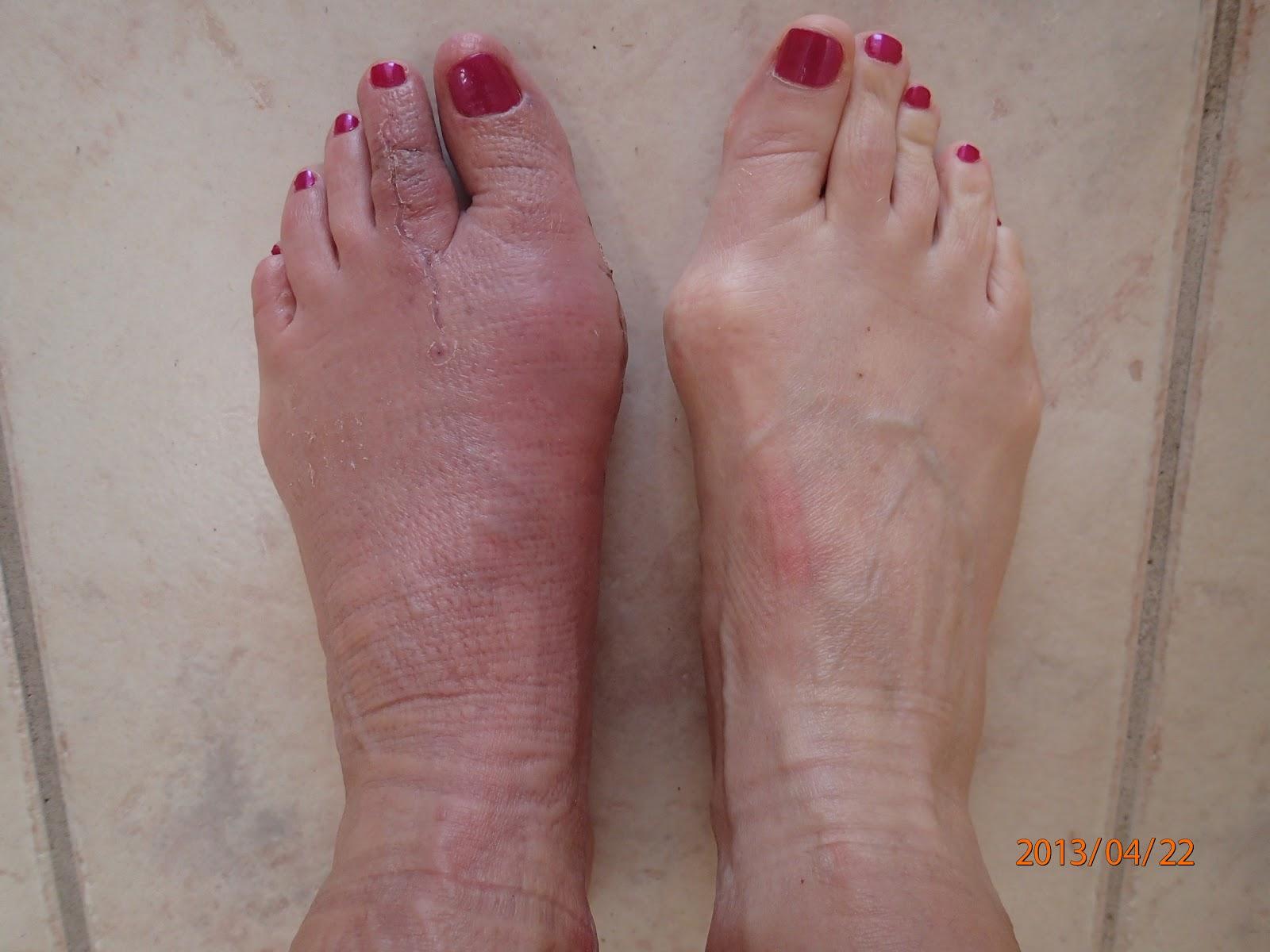 TORONTO FOOT BLOGGER - FOOT SPECIALIST, PODIATRIC MEDICINE