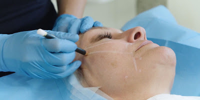 http://www.drrekhas.co.in/non-surgical-face-lift.php