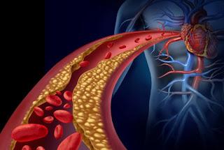 Memerangi Kolesterol