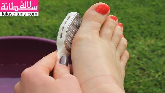 الخلايا الميتة في الأقدام