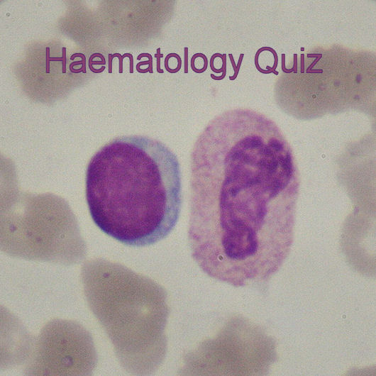 Medical Laboratory and Biomedical Science: Another Haematology Quiz