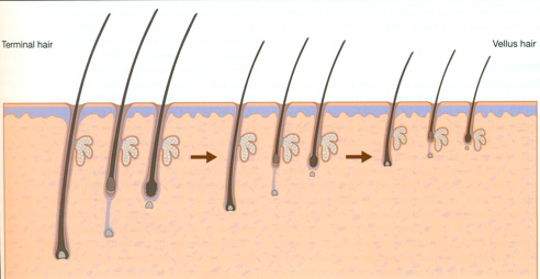 types of hair loss, hair loss facts, forhair korea