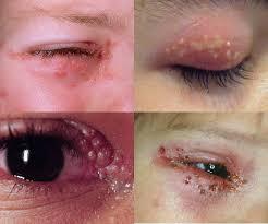 Herpes di Ketiak dan Sekitar Mata