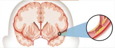 Pembuluh darah tersumbat di bagian otak sehingga menyebabkan stroke iskemik