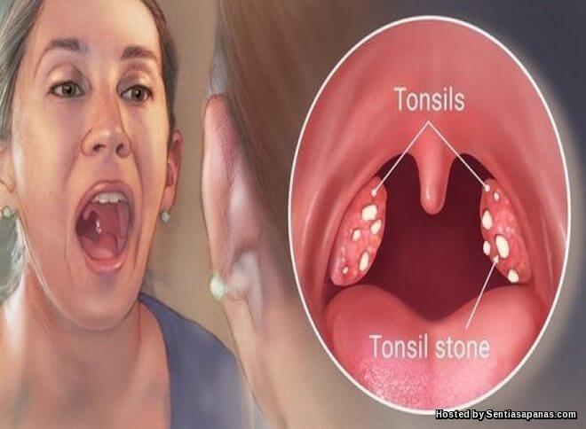 Merawat Bengkak Tonsil