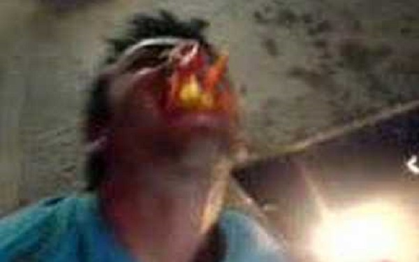 Homem embriagado engole peixe vivo e é severamente punido pelo animal (Imagem: Reprodução/Galileu)