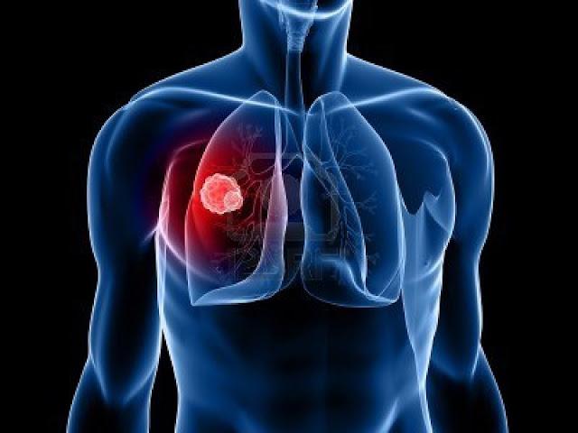 Pesquisa mundial descobre novo anticorpo para tratar câncer de pulmão