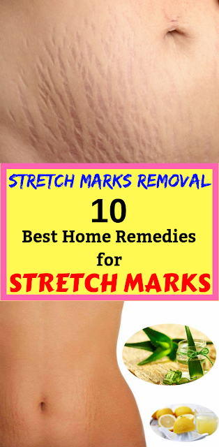 Stretch Marks Removal: 10 Best Home Remedies for Stretch Marks