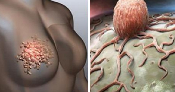 Women Must Stop Ignoring These 5 Signs of Breast Cancer