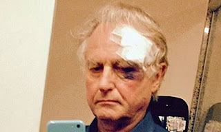 Dawkins wounded