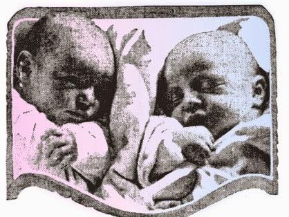 Embarazos de Gemelos, Trillizos, el embarazo multiple