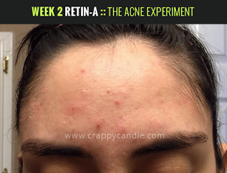 Week 2 on Retin-A :: The Acne Experiment