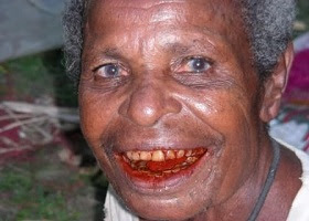 Reddish-orange teeth coloration from chewing betel nut.