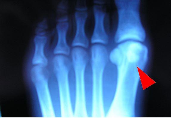 fracture doigt de pied