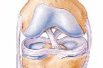 Líquido sinovial de la rodilla