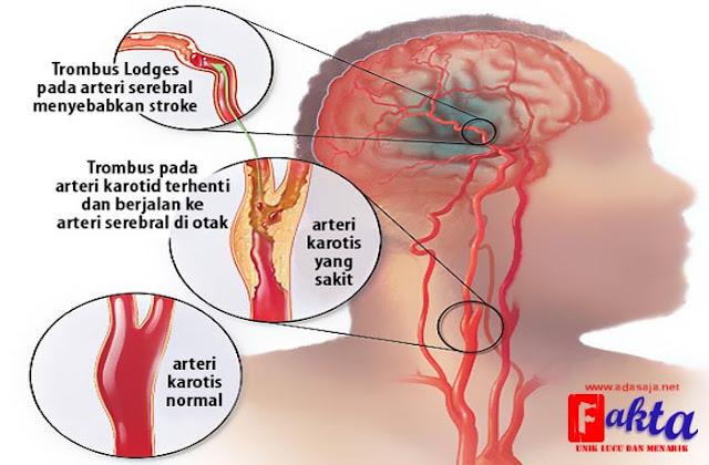 penanganan paling tepat untuk penderita serangan stroke