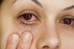 5 Penyakit Mata yang Paling Umum Terjadi di Indonesia