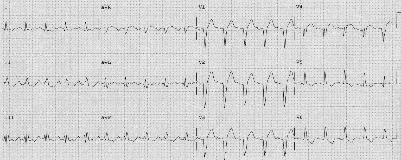 Dr. Smith's ECG Blog: LBBB: is there STEMI?