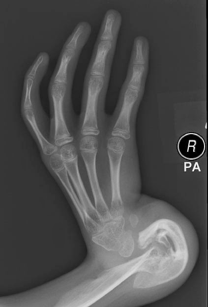 Congenital Hand And Arm Differences: Birth Abnormalities Of The Hand And Arm