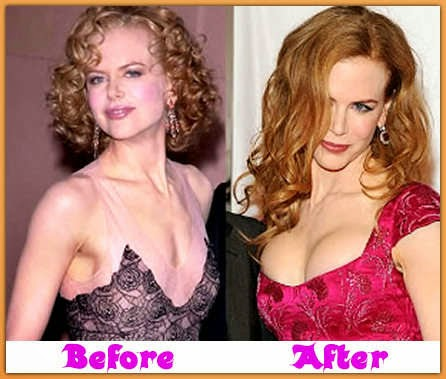 angelyne before after - photo #31
