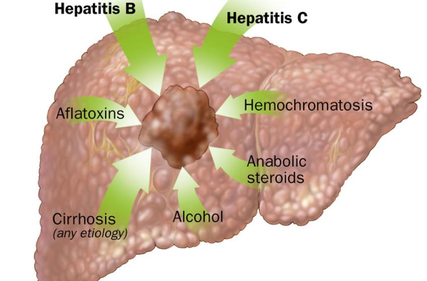 What Is Hemochromatosis Disease