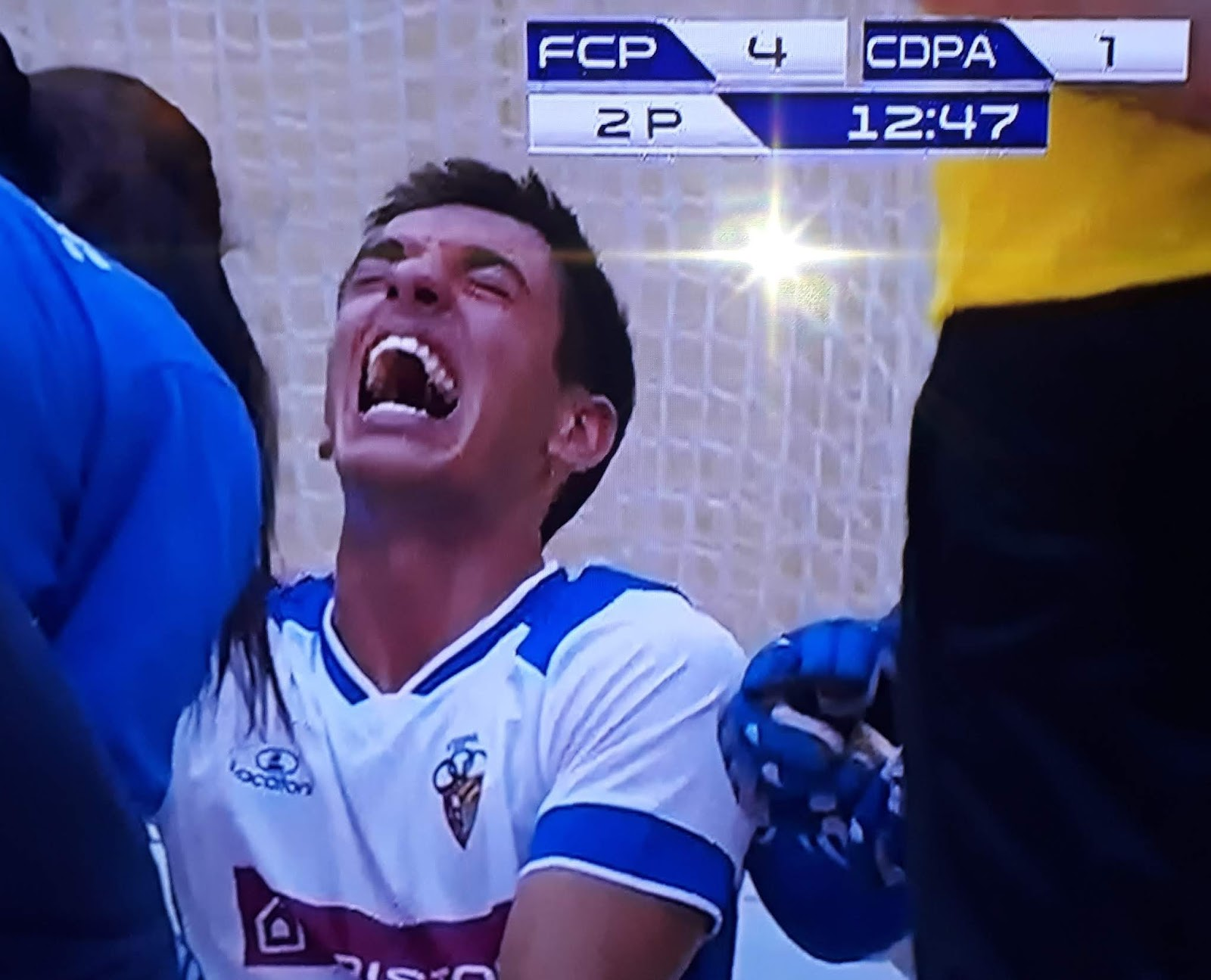 Felipe Fernandes lesiona-se com gravidade