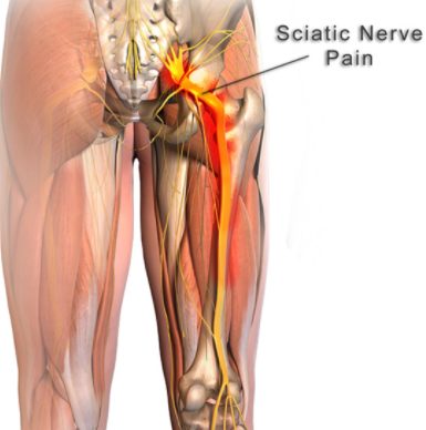 Sciatica Is Caused By Direct Compression Or The Nerve Or Irritation Of The Roots Of The Lower Lumbar And Lumbosacral Spine