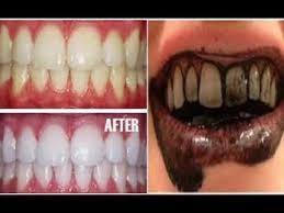 5 Cara Memutihkan Gigi Secara Alami Tanpa Efek Samping Dan Cepat