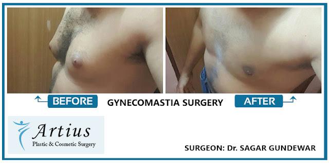 Gynecomastia in Navi Mumbai