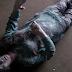 ΠΡΩΤΟΦΑΝΕΣ ΠΕΡΙΣΤΑΤΙΚΟ!!!Βρήκαν ΝΕΑΡΗ 19χρονη παγωμένη στους -30ºC με μόλις 8 παλμούς το λεπτό...ΠΕΘΑΙΝΕ...Η ΣΥΝΕΧΕΙΑ ΕΙΝΑΙ ΑΠΙΣΤΕΥΤΗ!!! (ΦΩΤΟ&ΒΙΝΤΕΟ)
