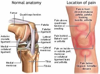 lokasi sakit lutut