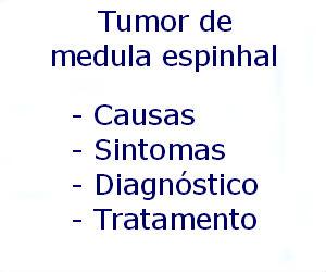 Tumor de medula espinhal causas sintomas diagnóstico tratamento prevenção riscos complicações