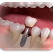 Dental Implant in Ahmedabad