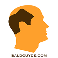 Male Pattern Baldness Stage 6 Hair Loss