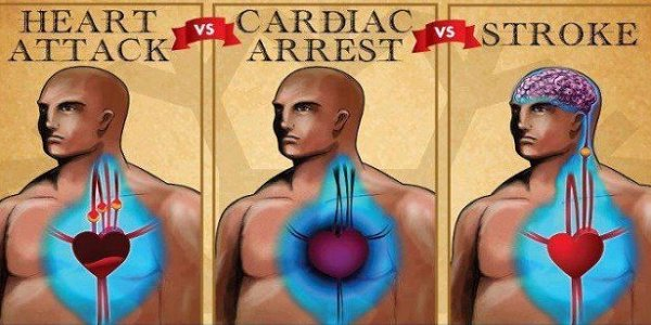 Cardiac Arrest, Heart Attack And Stroke