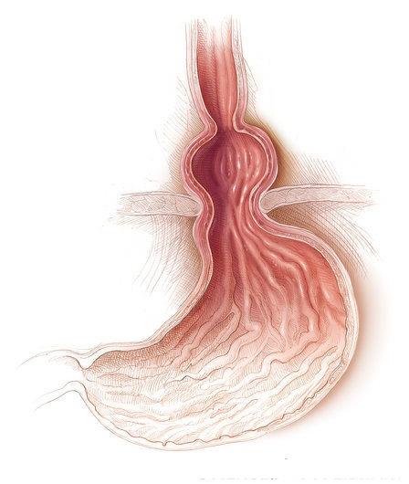 Hiatus Hernia Info: Option Treatments to get a Hiatus Hernia