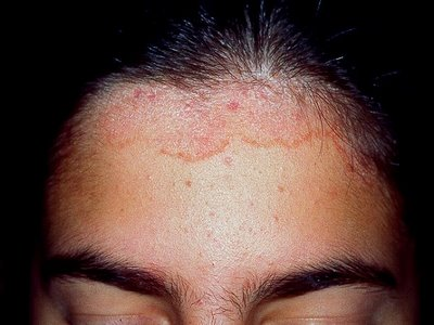 Skin Diseases Associated With the Malassezia Yeasts