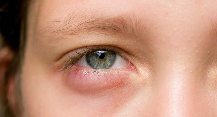 12 Cara Paling Efektif Mengatasi Mata Bisul Secara Alami ...