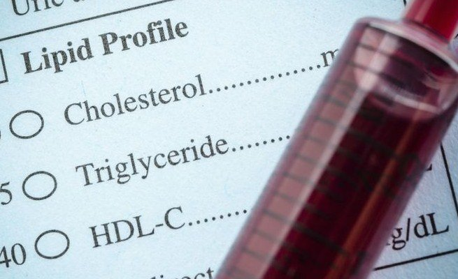 What Is Oxidized LDL Cholesterol and Why Is It Important?