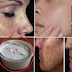 Remove Dark Spot With The Help Of Effective Simple Natural Remedy