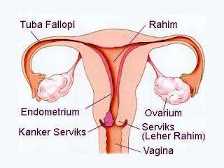 mengobati kanker rahim secara alami herbal, obat alami kanker rahim, pengobatan kanker rahim
