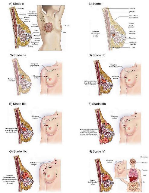 Tumeurs: Bien comprendre le cancer du sain