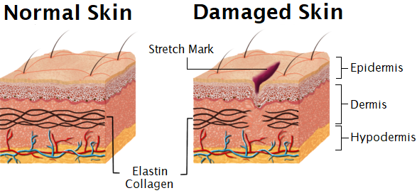 illustration of Stretch marks formation