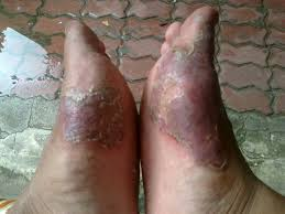 Untuk merontokan gatal eksim menahun di bagian kaki
