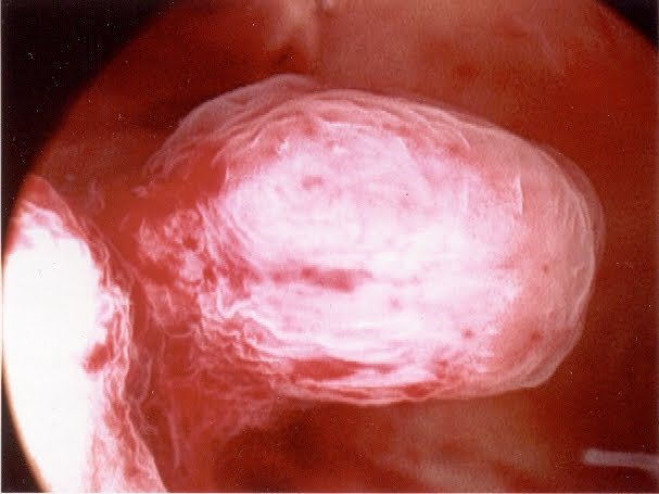 Uterine Polyps Images - Reverse Search