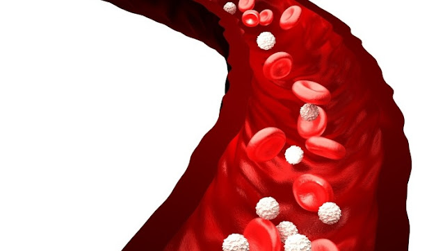 Types of Blood Cancer in Adults