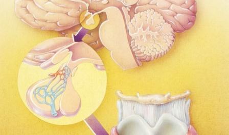 Kadar Hormon Prolaktin Tinggi (hiperprolaktinemia)