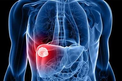 Cara Mengobati Hepatitis B dengan Temulawak
