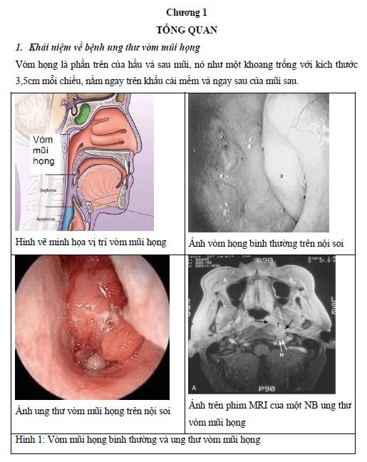 Đánh giá công tác hướng dẫn tự chăm sóc người bệnh ung thư vòm mũi họng được xạ trị đơn thuần tại bệnh viện K năm 2007